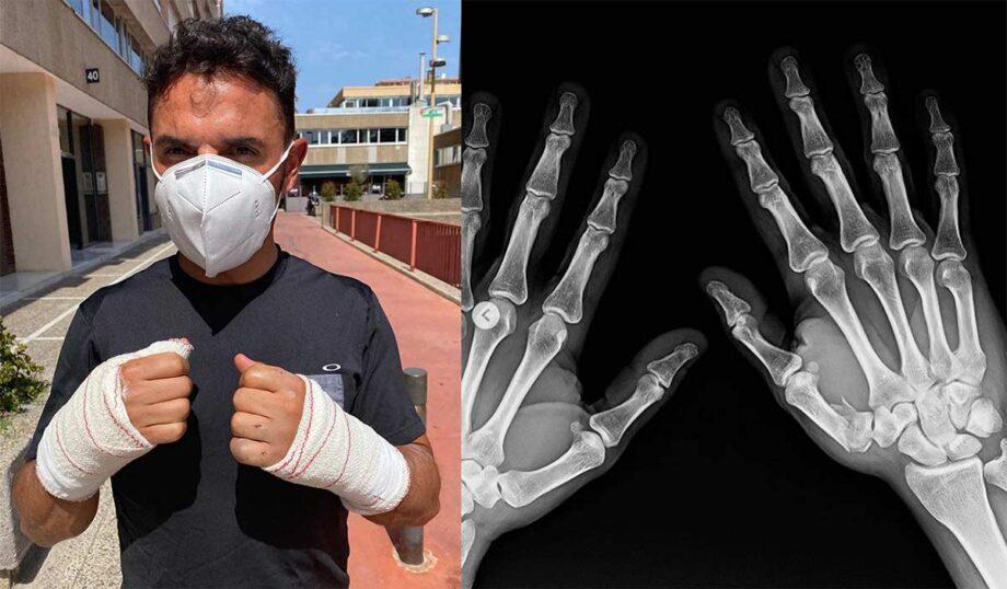 Joaquim 'Purito' Rodríguez sofre queda no Vallnord Bike Park